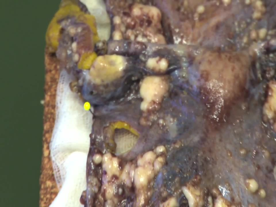 Pathovideo - Ovarialtumor preview image