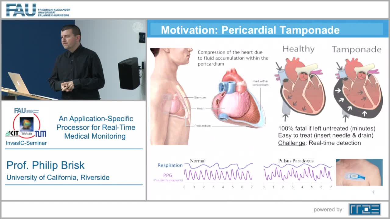 An Application-Specific Processor for Real-Time Medical Monitoring preview image