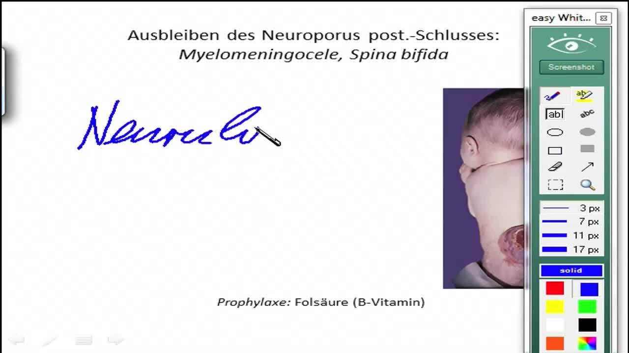 Vom Neuralrohr zum Rückenmark preview image