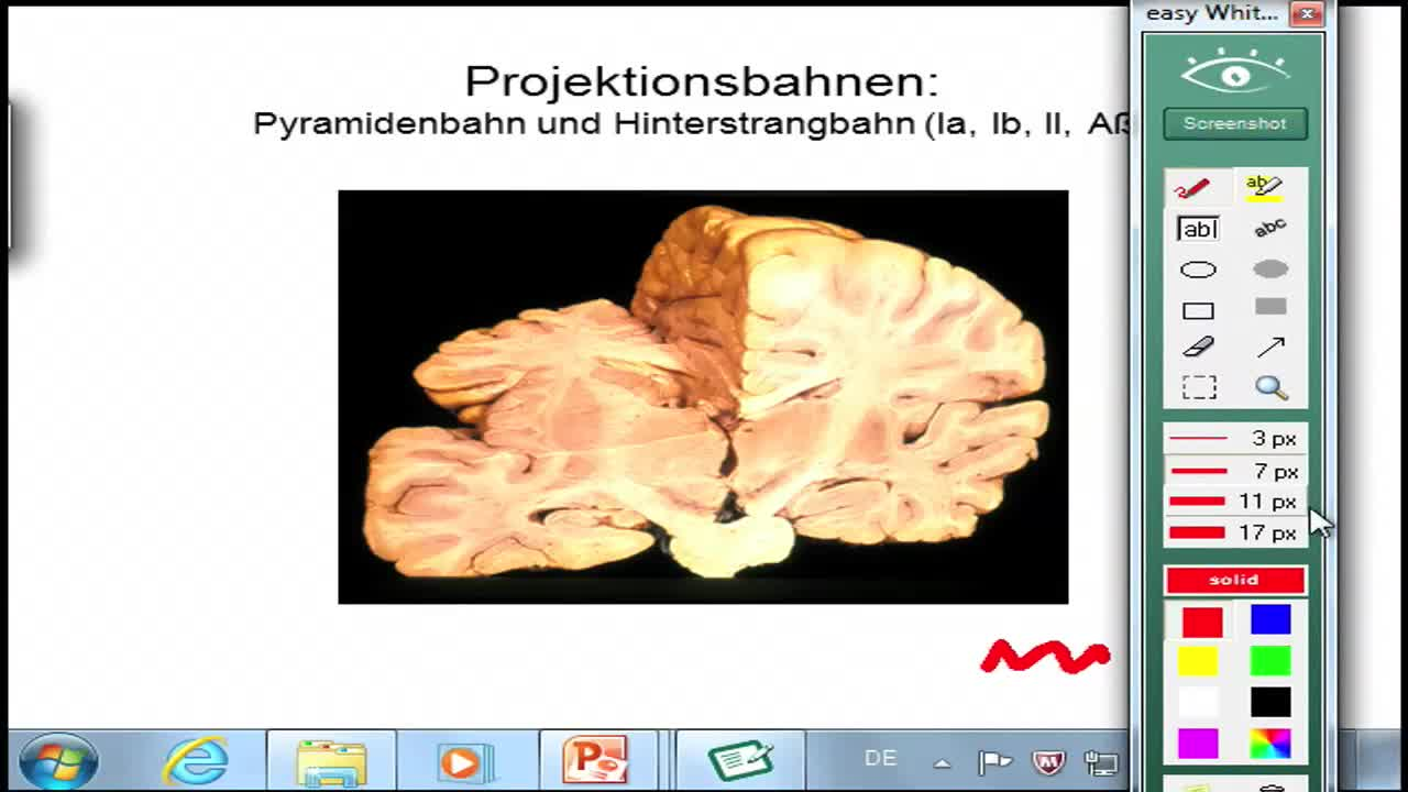 Sensomotorik: Homunkuli, Versorgungsgebiete der Hirnarterien, cerebraler Insult preview image