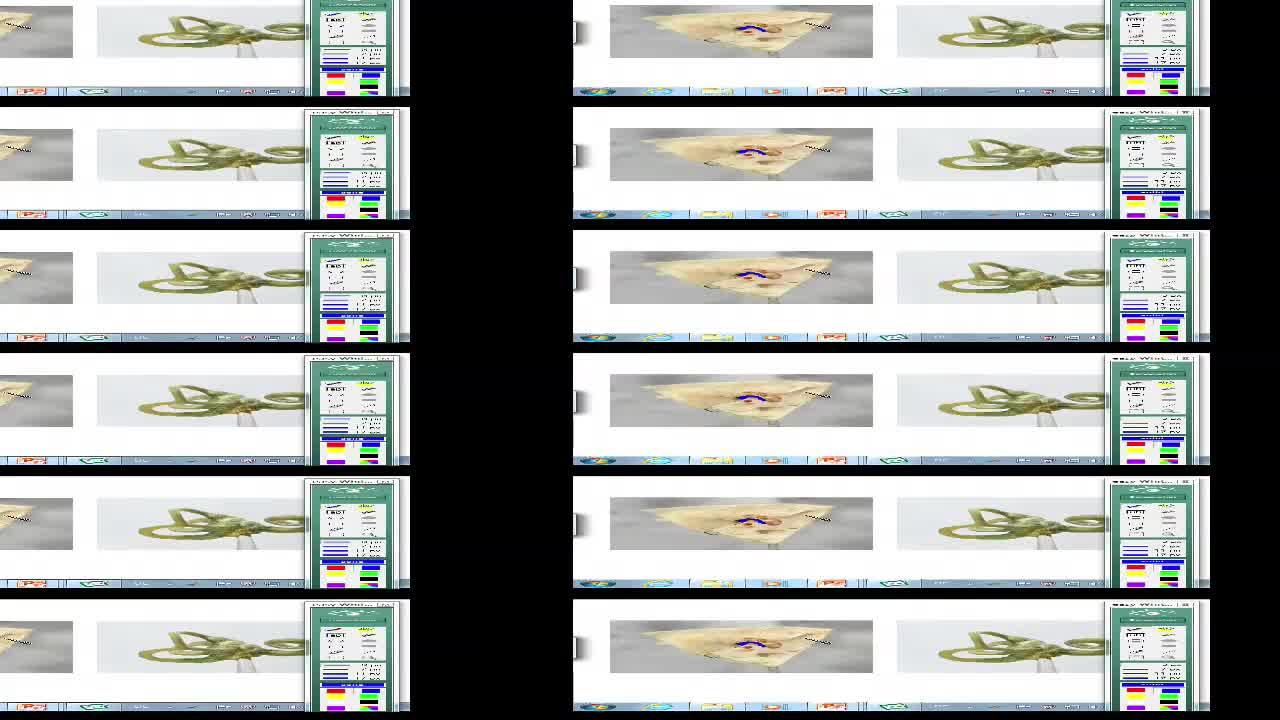 Vestibularsystem; Blickmotorik preview image