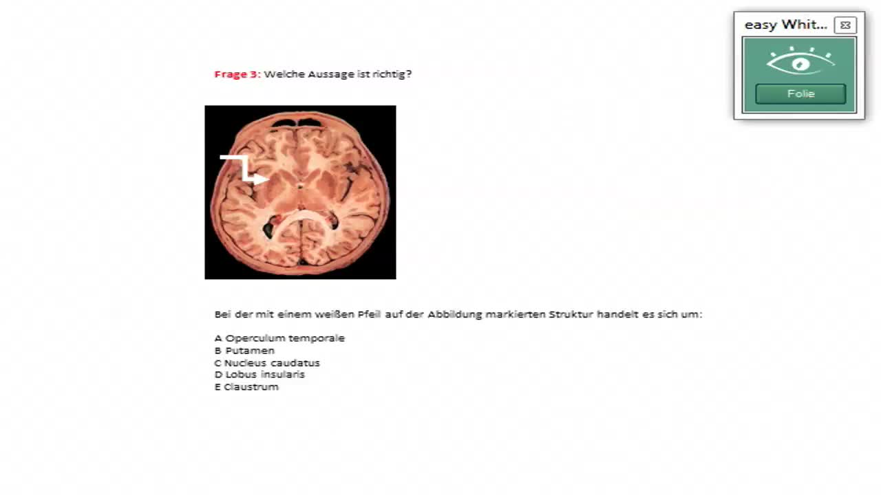 Limbisches System: Hippocampusformation preview image