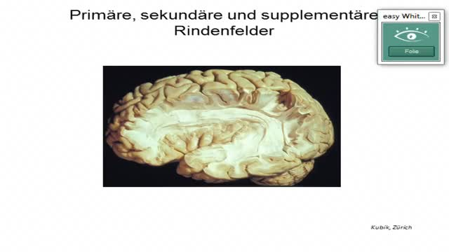"Neuroanatomie: Sprach""zentren"", Connectom, ischämischer Insult preview image"