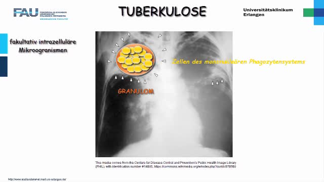 Medcast - Pathologie - Tuberkulose preview image