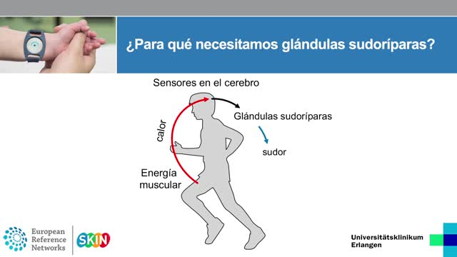 Ektodermale Dysplasie Spanisch preview image